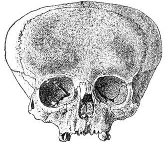 aymara-skull2.jpg