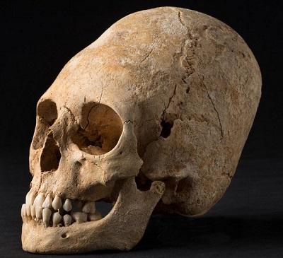 french_elongated_skull.jpg
